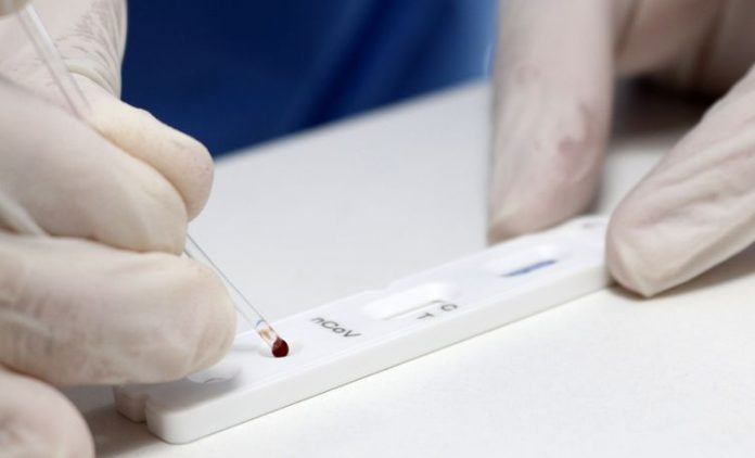 Brazil surpasses 2.5 mi people infected with coronavirus